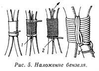 Рис. 5. Наложение бензеля