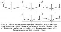 Рис. 9. Типы изогнуто-килеватых обводов