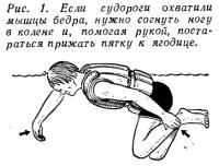 Рис. 1. Если судороги охватили мышцы бедра