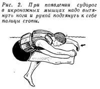 Рис. 2. При появлении судорог в икроножных мышцах