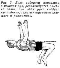 Рис. 3. Если судороги появились в мышцах рук